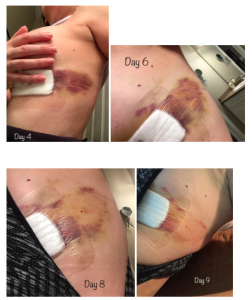 Can CBD Cream Treat Bruises, Wounds and RAD Burns? - Rx