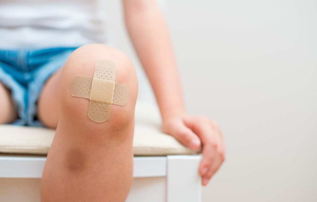 Can Cbd Cream Treat Bruises Wounds And Rad Burns Rx Canna Care